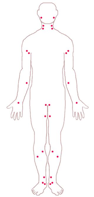 arterial pressure points for artery bleeding