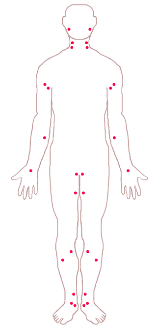 arterial pressure points for artery bleeding
